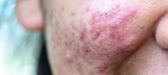 Psoriasis du visage traitement